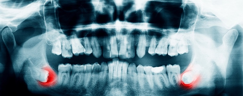 Dental xray showing the need for wisdom tooth extraction