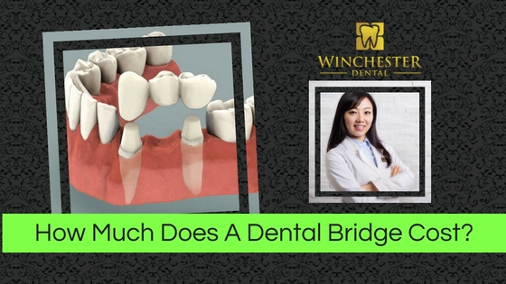 photo of Dr Hong, a 3 unit dental bridge and text reading how much does a dental bridge cost