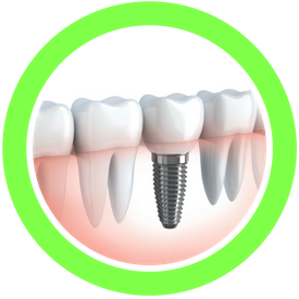 ilustration of dental implants vs natural teeth
