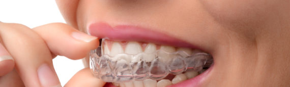 Tips For Successful Invisalign Treatment